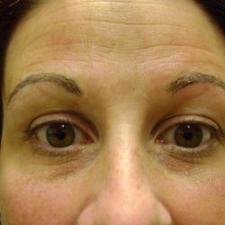 After eyebrow micropigmentation