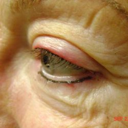 After eyeliner micropigmentation