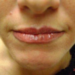 After lip micropigmentation