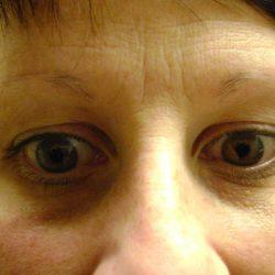 Before eyebrow micropigmentation