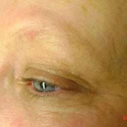 Before eyebrow micropigmentation