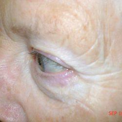 Before eyeliner micropigmentation