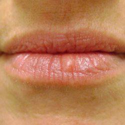 Before lip micropigmentation